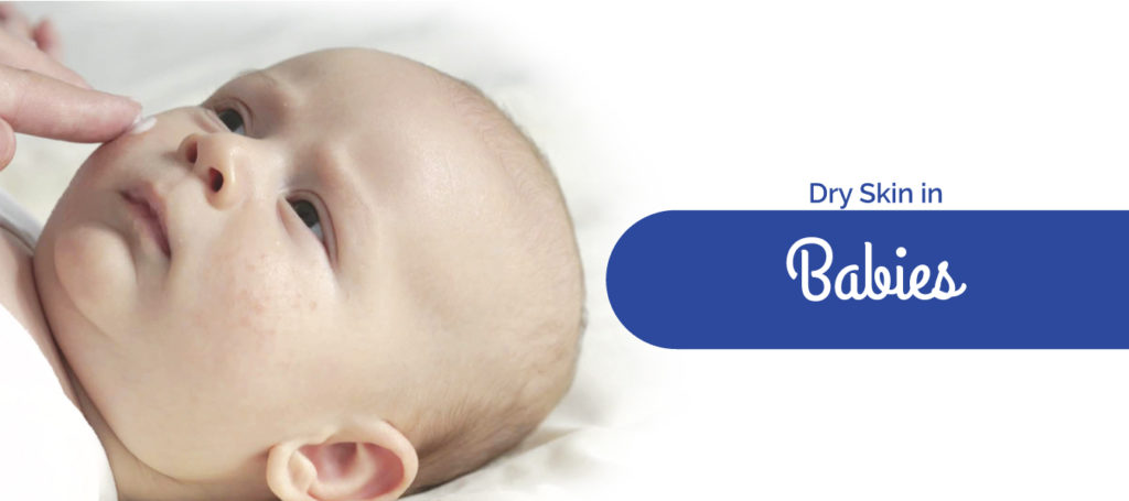 Dry Skin in Babies : Causes, Symptoms And ways To Prevent