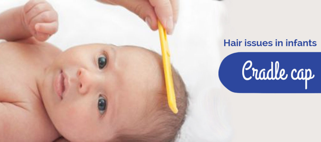 Hair Issues in Infants: Cradle Cap