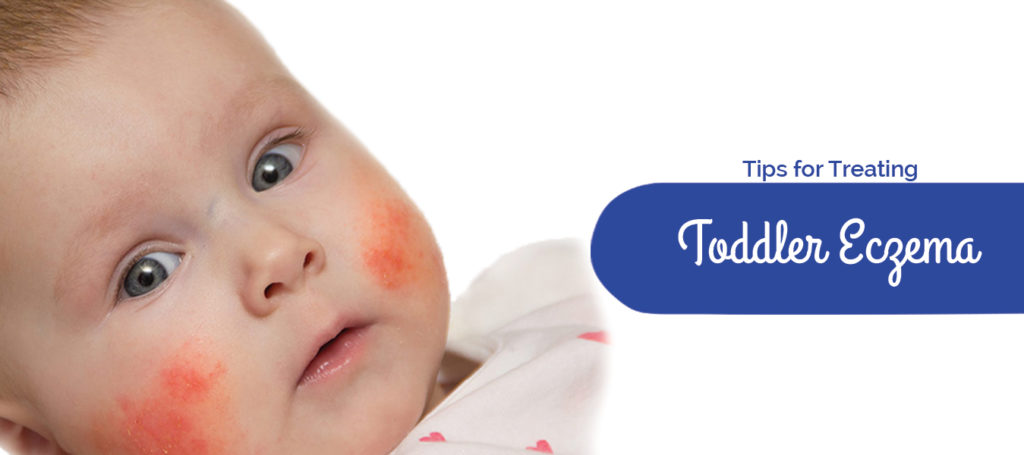Tips for treating Toddler Eczema