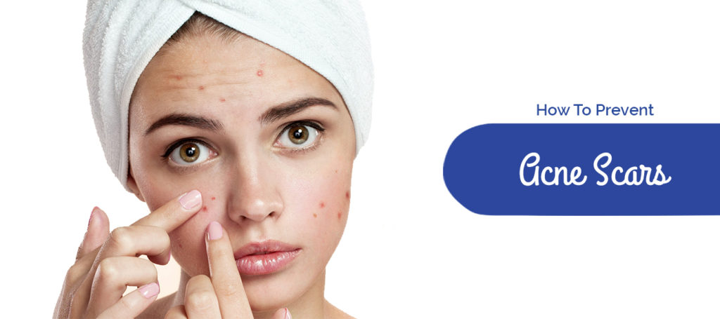 How To Prevent Acne Scars