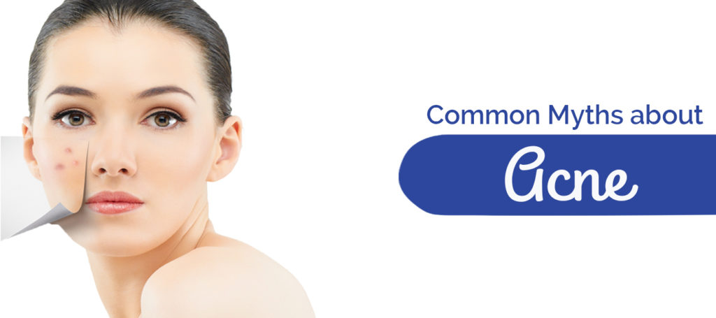 Common Myths about Acne