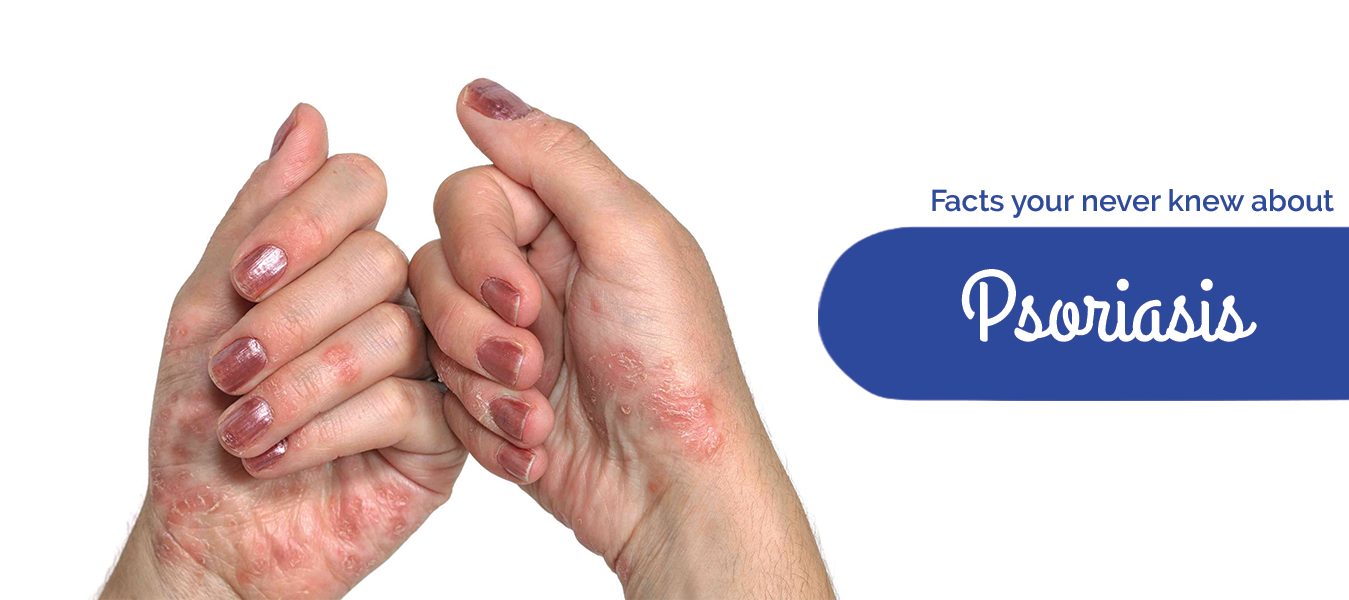 Facts your never knew about Psoriasis
