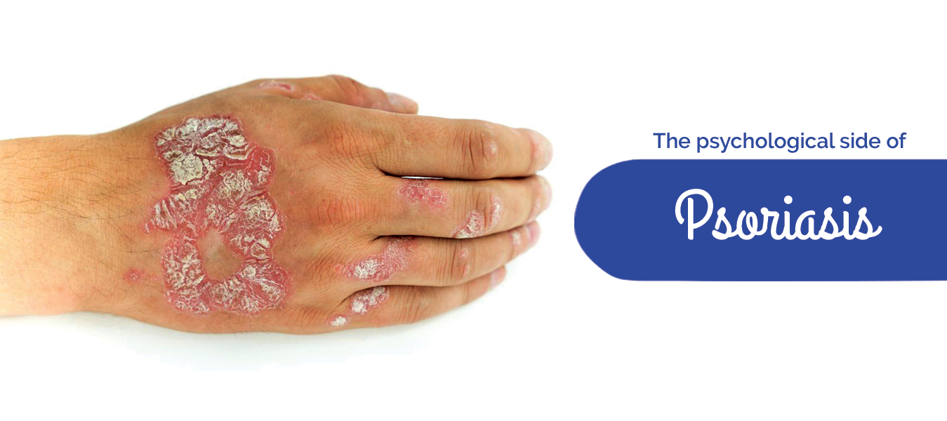 The psychological side of Psoriasis