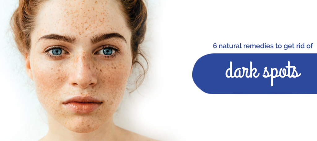 6 natural remedies to get rid of dark spots