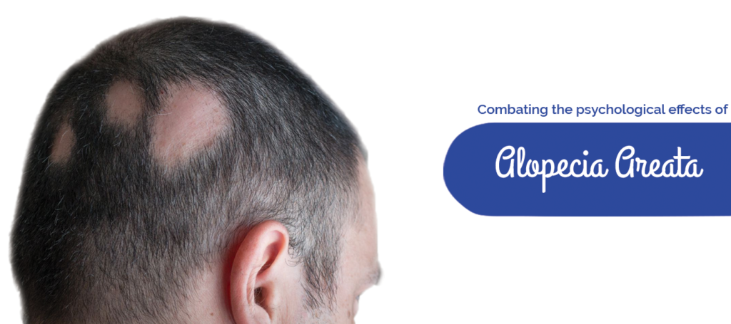 Combating the psychological effects of Alopecia areata