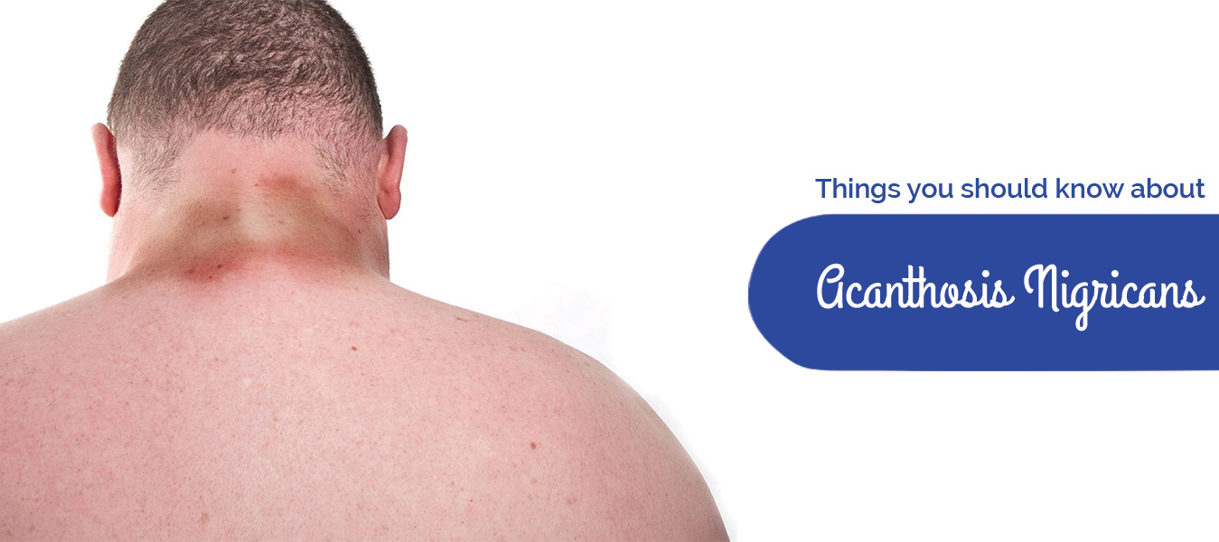 Things you should know about Acanthosis Nigricans