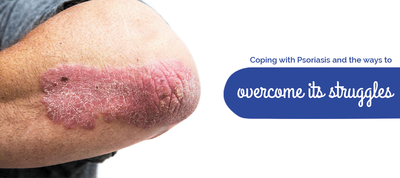 Coping with Psoriasis and the ways to overcome its struggles