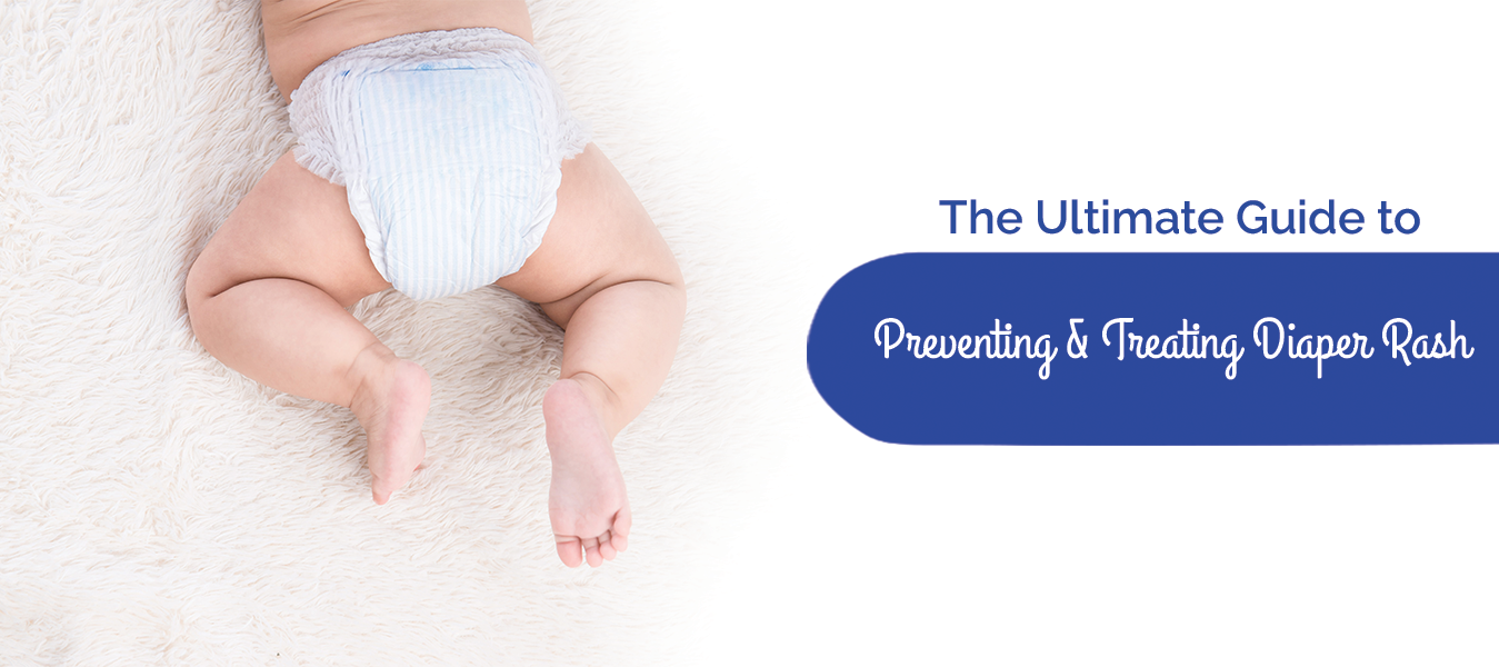 The Ultimate Guide To Preventing & Treating Diaper Rash