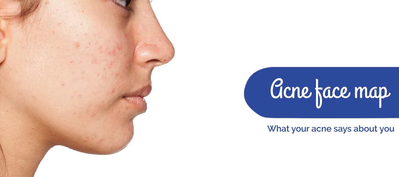 Acne face map: What your acne says about you